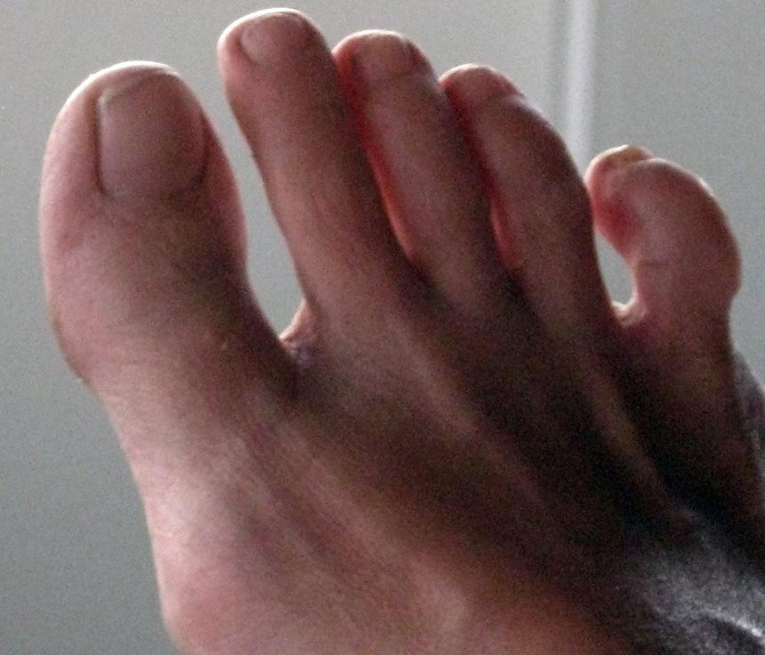 krampe i fødder og tæer